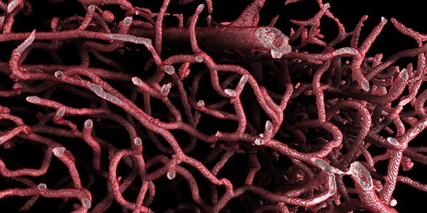 brain vessels