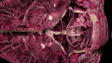 Reconstructed cerebrovascular network