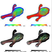 A snapshot of blood flow simulated and visualized within a digitally reconstructed patient-specific middle cerebral artery aneurysm.